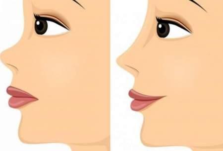 سالانه 25 تا 80 هزار جراحی زیبایی بینی در ایران