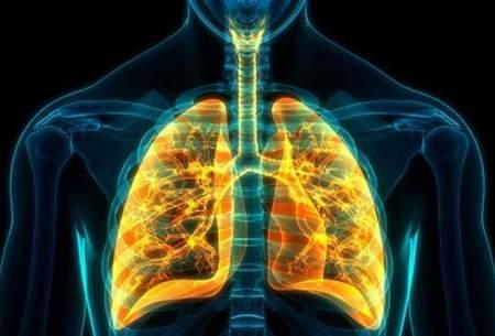 کشفدرمان ساده برایبیماری انسدادی مزمن ریه