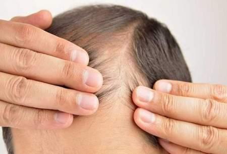 ریزش موی مرتبط با دیابت؛ دلایل و درمان