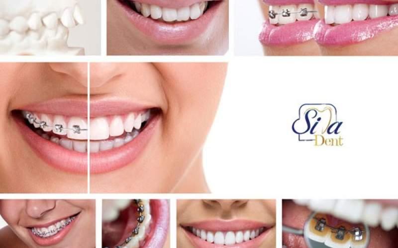 ارتودنسی دندان چه مراحلی را دارد ؟ راهنمای انتخاب بهترین دکتر ارتودنسی در تهران