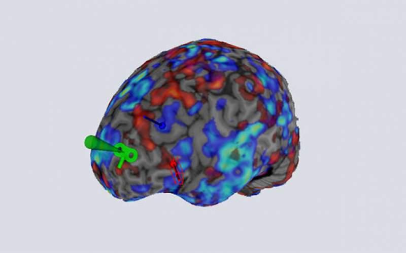 درمان افسردگی بدون عوارض جانبی بااسکن مغز