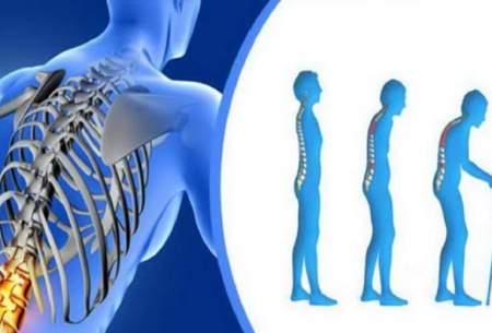 شایعترین بیماری استخوان و مفاصل را بشناسید