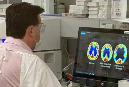 درمان بیماری آلزایمر با دو داروی جدید تجربی