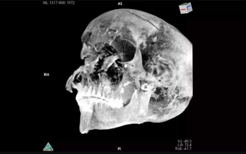 راز مرگ فرعون مصری مشخص شد