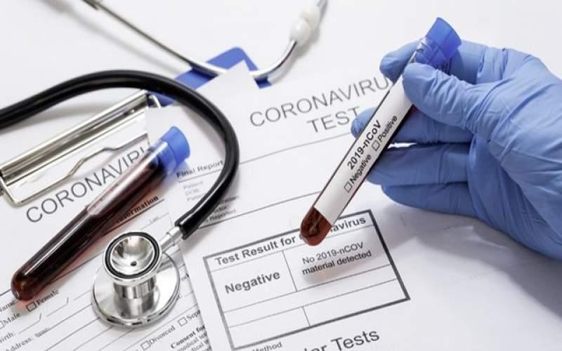 هزینه تست تشخیص ویروس جهش یافته؛ ۸ میلیون تومان