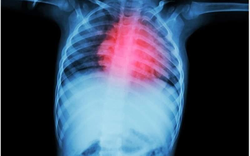 بیماری که میتواند باعث نارسایی قلبی شود