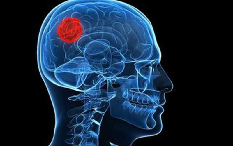 هجوم تومورهای سرطانی سایرنقاط بدن به مغز