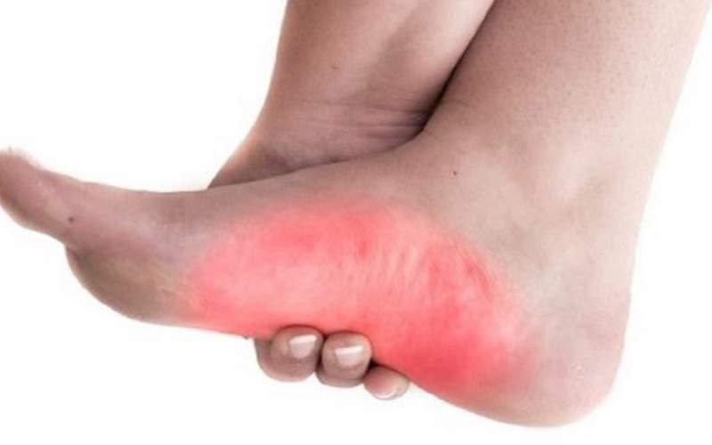 درمانهای خانگی ساده،اما موثر در تسکین پا درد