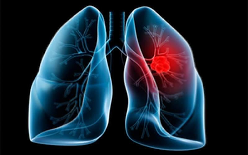 بهترین خوراکی برای درمان عفونت ریه چیست؟