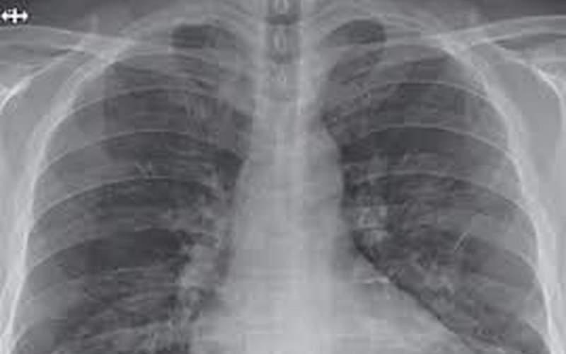 ریه چه میزان درگیرکروناجهش یافته میشود؟