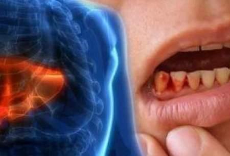 علائم کبد چرب و راههای پیشگیری از آن