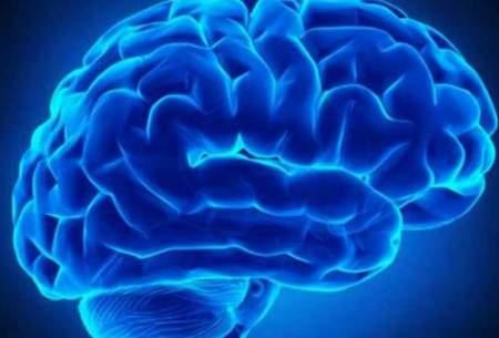 آشنایی با فاکتورهای حفظ سلامت مغز