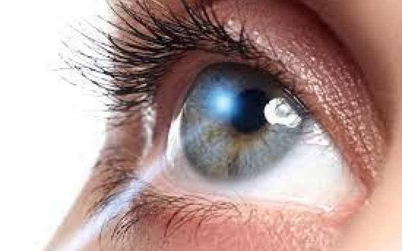 چشم؛دریچهای برای تشخیص بسیاری از بیماری ها