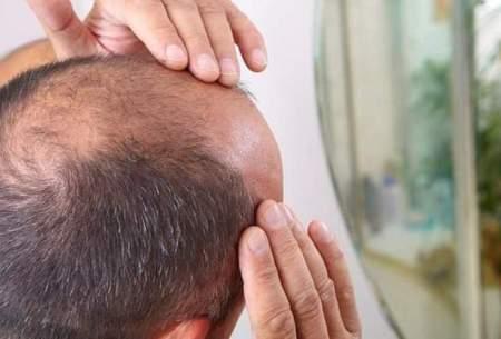 کشف جدید درباره علت ریزش مو