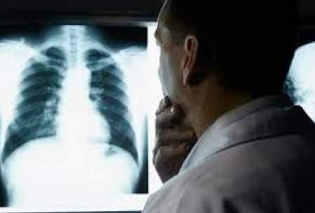 کرونای جهش یافته ۳ روزه ریه را درگیر میکند