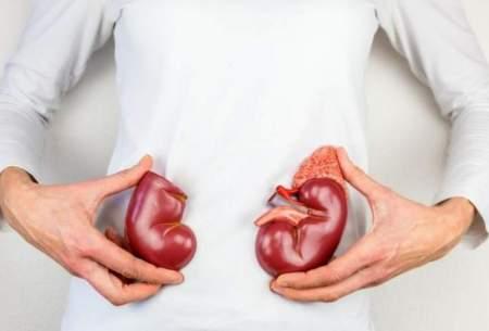 ۱۰ نکته کلیدی برای حفظ سلامت کلیهها
