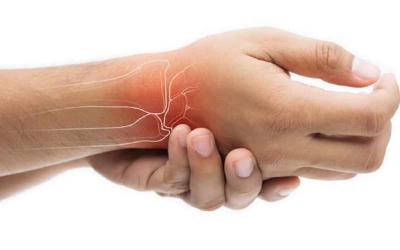 دردناکترین سندرم مرتبط با بیماری روماتیسم