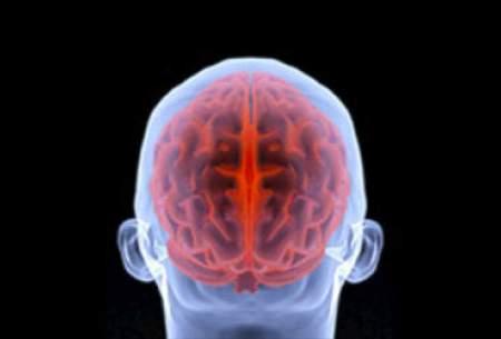 آیا آسیبهای مغزی موجب آلزایمر میشود؟