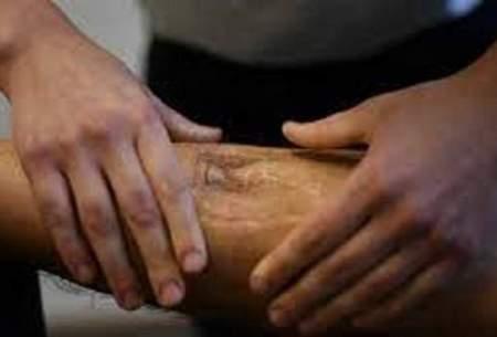 ۵نشانه مرگی خاموش که در رگهای شما میخزد