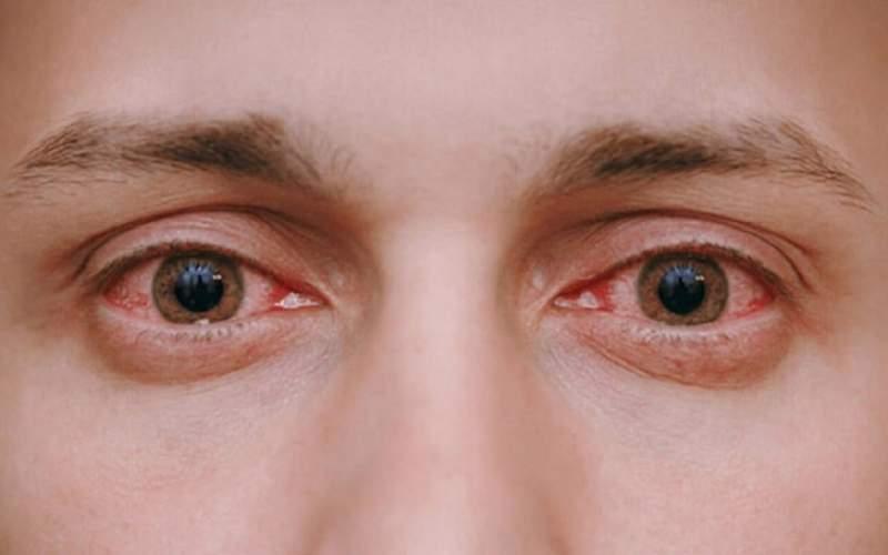 ۴ دلیل اصلی قرمزی چشم و درمان آن