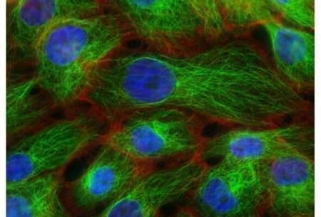 تاثیر شاخص توده بدنی بر سرطان سینه