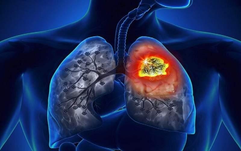 توصیههایی برای پیشگیری از ابتلا به سرطان ریه