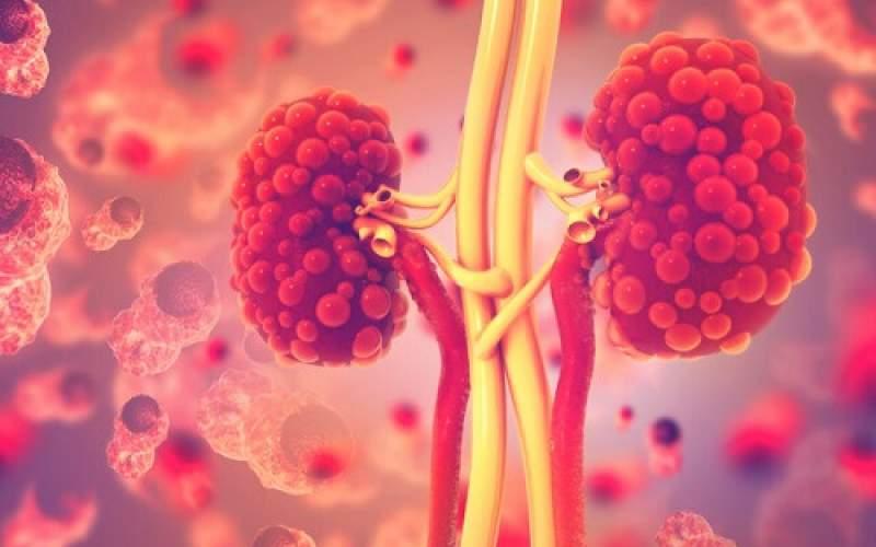 کشف آنزیمیکهمیتواندناجی ۷۰۰میلیون نفرباشد
