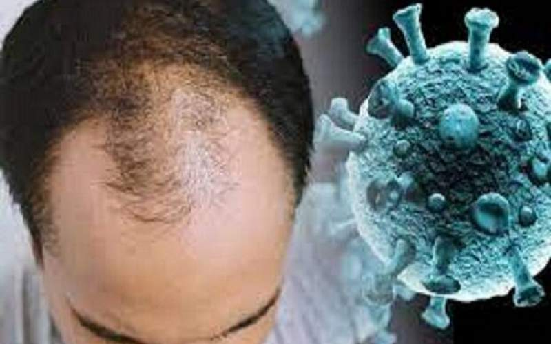 ارتباط ژن طاسی در مردان با افزایش خطر کرونا