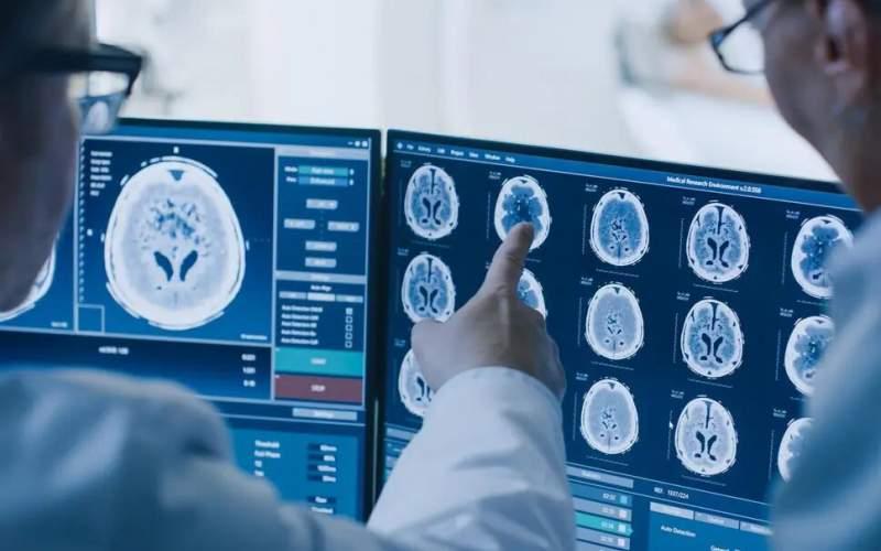 سیستم عصبی هدف مطلوبی برای تهاجم کرونا