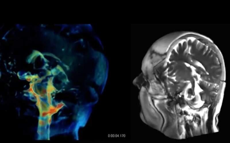 فناوری جدیدی برای تصویربرداری ۳بعدی از مغز