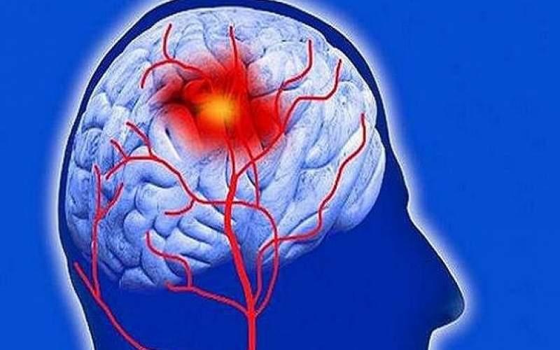 پنج راه اصلی پیشگیری ازسکته مغزی رابشناسید