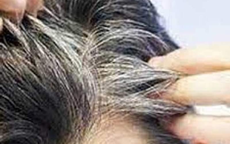 چطور از سفید شدن موهایمان جلوگیری کنیم؟