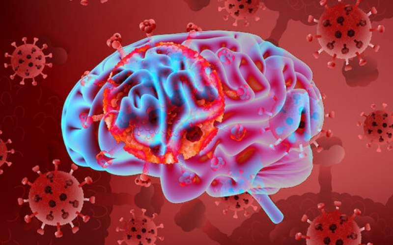 کاهش ماده خاکستری مغز در بیماران کرونایی