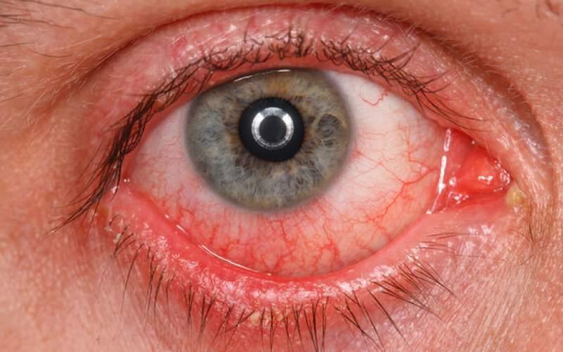 ابتلای سلول های  چشم به کووید-۱۹