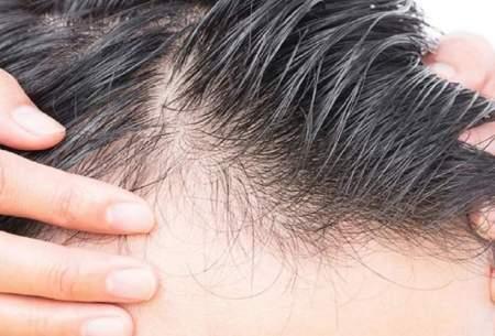 ریزش موی ناشی از ویروس کرونا دائمی نیست