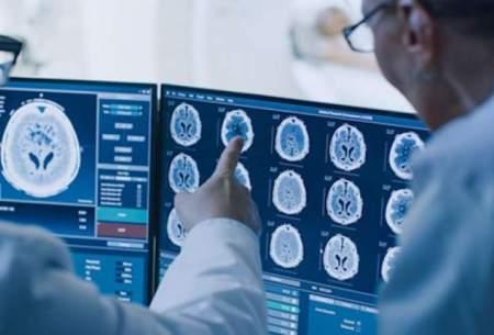 هوش مصنوعی آلزایمر را زودتر تشخیص میدهد