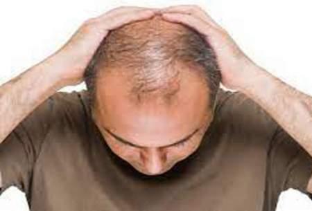 عاملی دور از انتظار که منجر به ریزش مو میشود