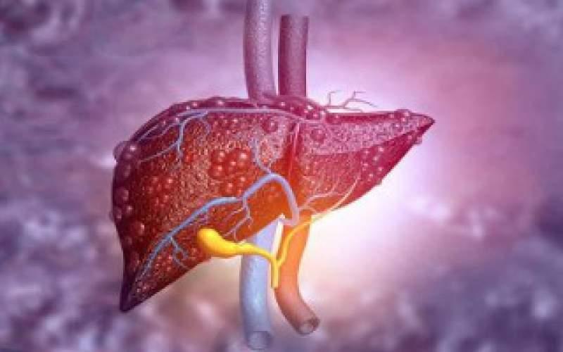 علائمی که از بیماریهای کبدی خبر میدهند