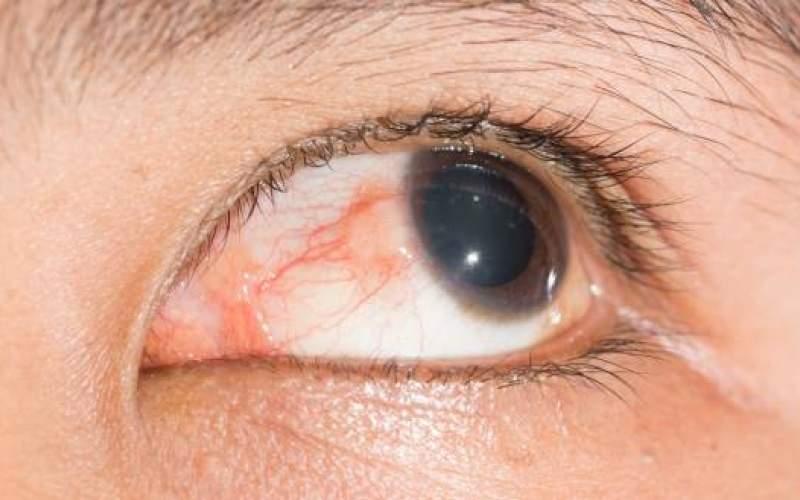 رایجترین آسیبهای چشمی و راه حل هر کدام