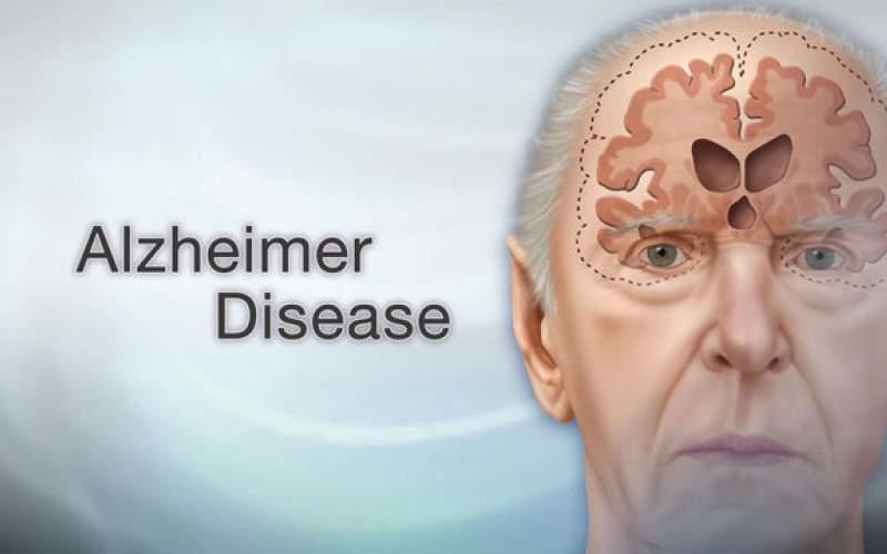درمان آلزایمر ناشی ازضربه مغزی باداروی جدید