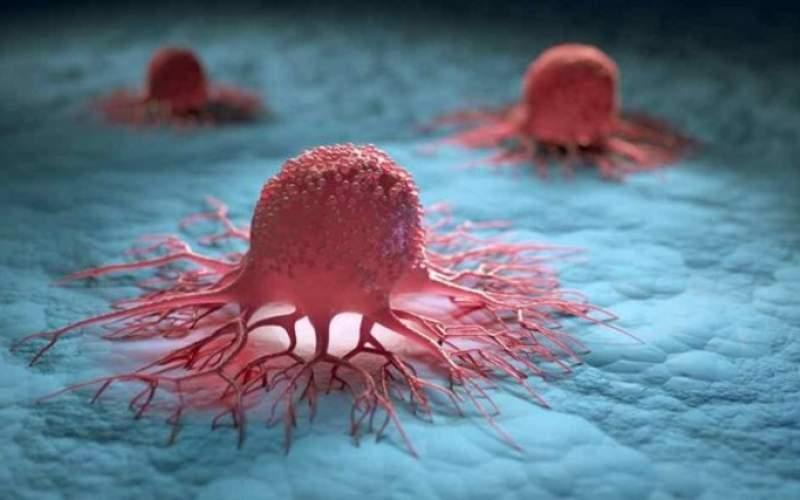روشی برای جلوگیری ازگسترش تومور سرطانی
