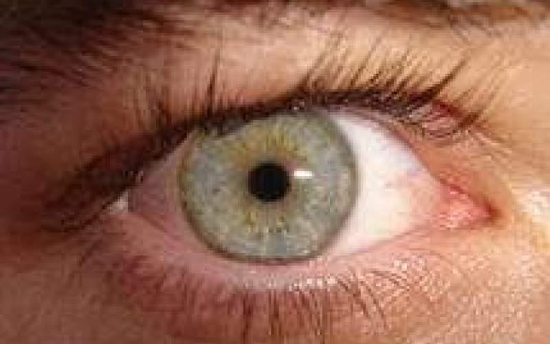 عارضهای شایع، اما درمان پذیر در چشم