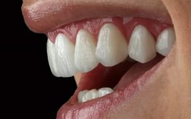 روکشهای ونییر  مناسب برای زیبایی دندان
