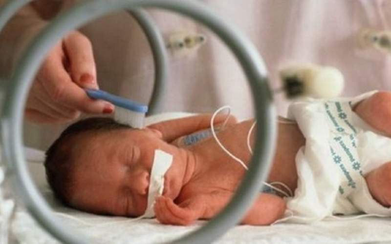 سکته مغزی در کمین نوزادان نارس