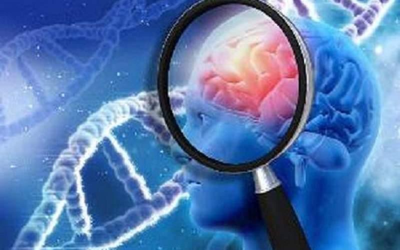 کشف فلزات میکروسکوپی درمغز بیماران آلزایمری