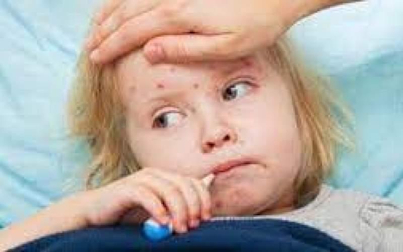 دردناکترین علائم بیماری کاوازاکی در کودکان