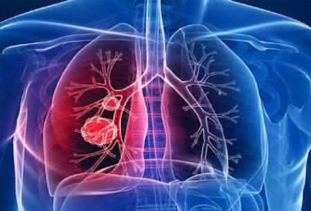 ۶ نشانه که ریههایتان نیازمند پاکسازی است