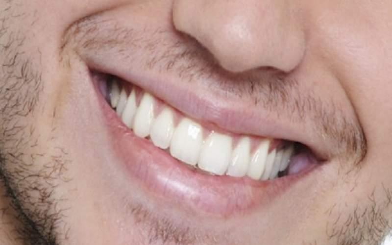 اگر می خواهید از شر دندان پزشکی خلاص شوید، بخوانید