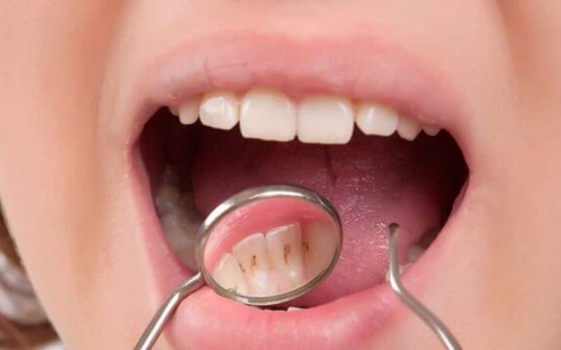 خوراکیهایی که به سلامت دندانها آسیب میزند