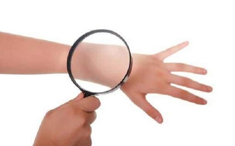 آنتی بیوتیک ها در درمان سرطان پوست موثرند